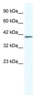 Western blot - ZNF322A antibody (ab49338)