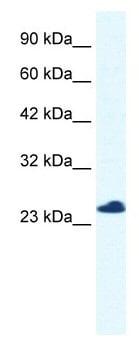 Western blot - C14orf166 antibody (ab49342)