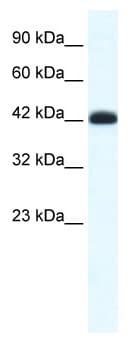Western blot - SLC2A4RG antibody (ab49344)