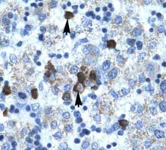 Immunohistochemistry (Paraffin-embedded sections) - PCYOX1 antibody (ab49347)