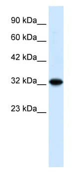 Western blot - TZFP antibody (ab49349)