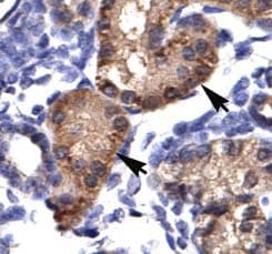 Immunohistochemistry (Paraffin-embedded sections) - Aryl hydrocarbon Receptor  antibody (ab49351)