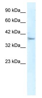 Western blot - KLHL14 antibody (ab49353)