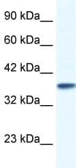 Western blot - KCNK3 antibody (ab49433)