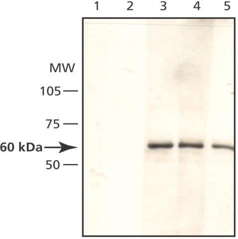 Western blot - AMPK alpha 1 antibody (ab49656)
