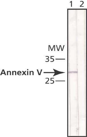 Western blot - Annexin V antibody [AN5] (ab49823)