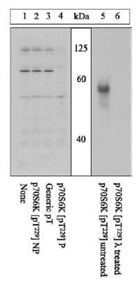 Western blot - S6K (phospho T229) antibody (ab5231)