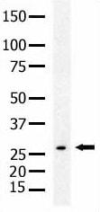 Western blot - SENP8 antibody (ab5279)