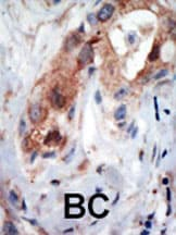 Immunohistochemistry (Formalin/PFA-fixed paraffin-embedded sections) - PIP5K1 beta antibody (ab5468)