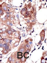 Immunohistochemistry (Formalin/PFA-fixed paraffin-embedded sections) - MUSK antibody (ab5510)