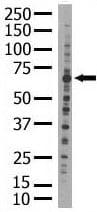 Western blot - RYK antibody (ab5513)
