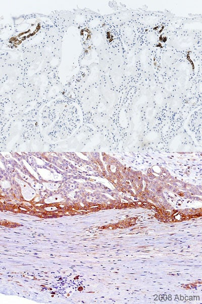 Immunohistochemistry (Formalin/PFA-fixed paraffin-embedded sections) - alpha B Crystallin (phospho S59) antibody (ab5577)