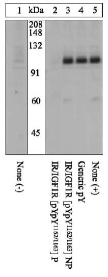 Western blot - Anti-IGF1 Receptor (phospho Y1162 + Y1163) antibody (ab5680)