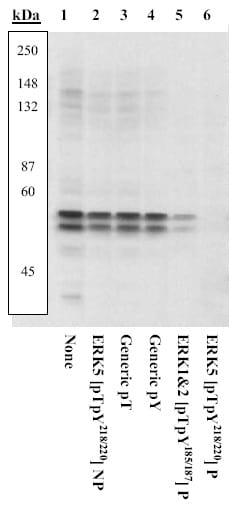 Western blot - ERK5 (phospho T218 + Y220) antibody (ab5686)