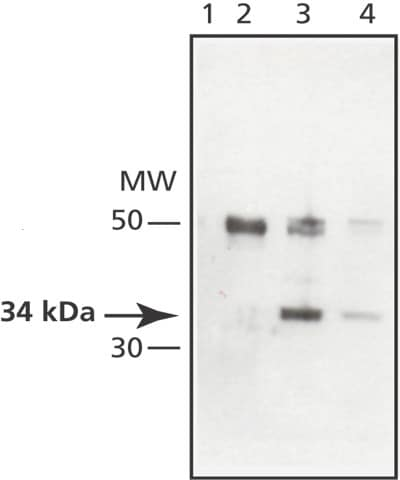 Western blot - MAPRE1 antibody (ab50188)