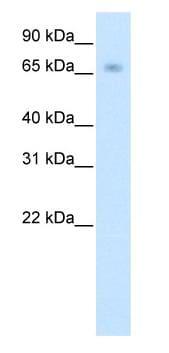 Western blot - KBTBD10 antibody (ab50631)
