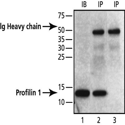Immunoprecipitation - Profilin 1 antibody - Carboxyterminal end (ab50667)