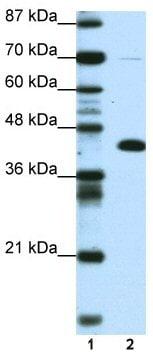 Western blot - ZBTB25 antibody (ab50707)