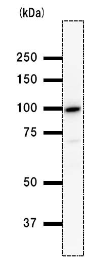 Western blot - BRD3 antibody [2088C3a] (ab50818)
