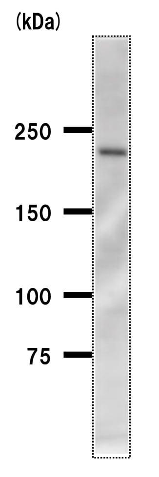 Western blot - Acinus antibody [2005C3a] (ab50827)