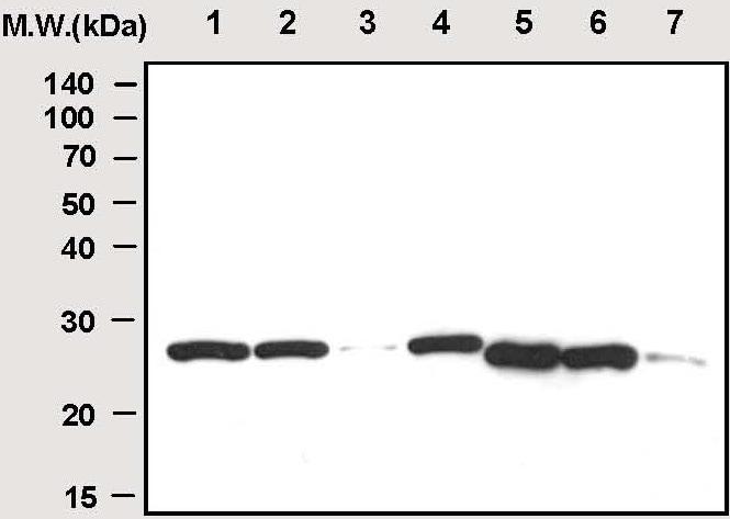 Western blot - C Reactive Protein antibody [26D7] (ab50861)
