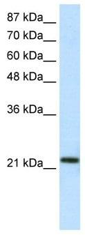 Western blot - HMG1L10 antibody (ab50903)