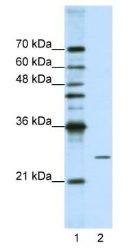 Western blot - POP4 antibody (ab50948)