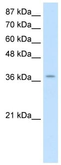 Western blot - ZNF550 antibody (ab50985)