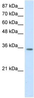 Western blot - HOXD4 antibody (ab50995)