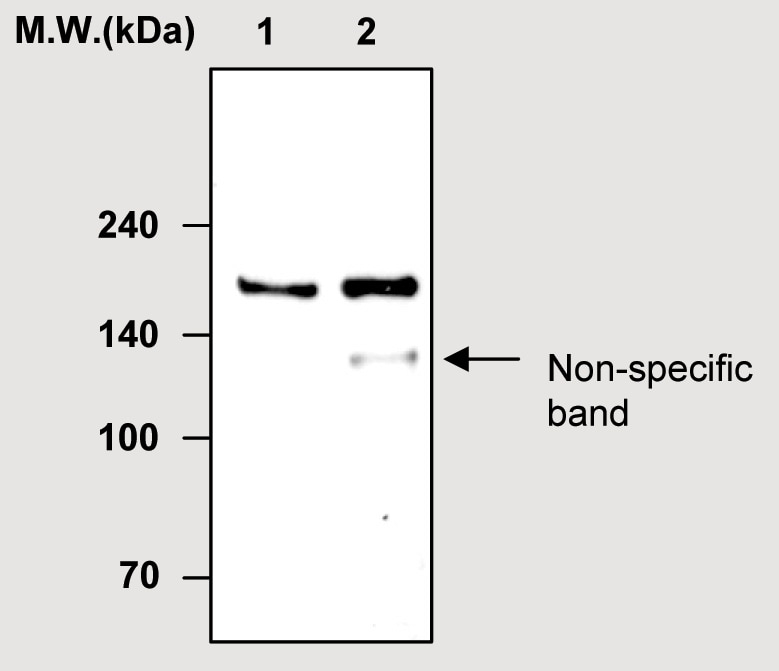 Immunoprecipitation - Factor H antibody [63G5] (ab51043)
