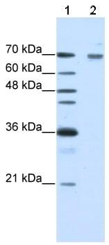 Western blot - Frizzled 7 antibody (ab51049)