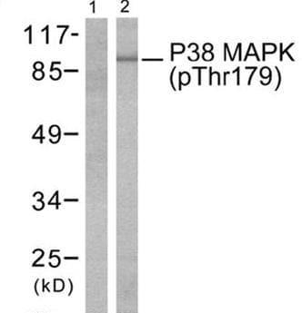Western blot - p38 (phospho T180) antibody (ab51050)