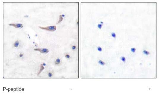 Immunohistochemistry (Paraffin-embedded sections) - Glutamate Receptor 1 (AMPA subtype) (phospho S863) antibody (ab51066)