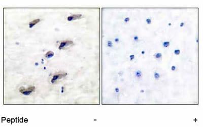 Immunohistochemistry (Paraffin-embedded sections) - mTOR antibody (ab51089)