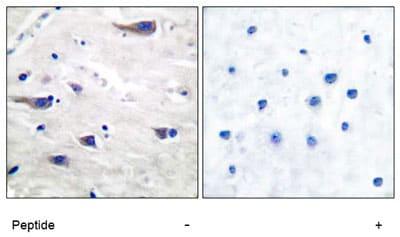 Immunohistochemistry (Paraffin-embedded sections) - PDGF Receptor beta antibody (ab51090)