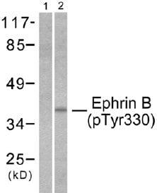 Western blot - Ephrin B (phospho Y330) antibody (ab51118)