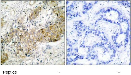 Immunohistochemistry (Paraffin-embedded sections) - EGFR antibody (ab51128)