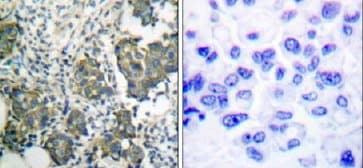 Immunohistochemistry (Paraffin-embedded sections) - Cytokeratin 8 antibody (ab51152)