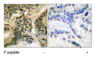 Immunohistochemistry (Paraffin-embedded sections) - PKC (phospho T410) antibody (ab51166)