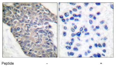Immunohistochemistry (Paraffin-embedded sections) - Synaptotagmin antibody (ab51172)