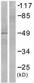 Western blot - Tyrosine Hydroxylase antibody (ab51191)