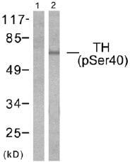 Western blot - Tyrosine Hydroxylase (phospho S40) antibody (ab51206)