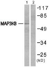 Western blot - MAP3K8 antibody (ab51208)