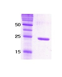 SDS-PAGE - SNAP25 protein (ab51291)