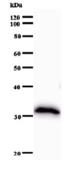 Western blot - Calpain 7 antibody [2107C3a] (ab51293)