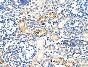 Immunohistochemistry (Paraffin-embedded sections) - RBM4B antibody (ab51345)