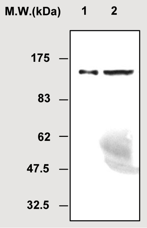 Western blot - GPLD1 antibody [38A1] (ab51356)