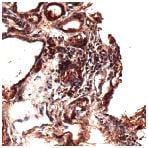 Immunohistochemistry (Formalin/PFA-fixed paraffin-embedded sections) - Thyroglobulin antibody [SPM517], prediluted (ab52134)