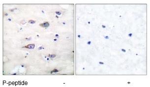 Immunohistochemistry (Paraffin-embedded sections) - GluR2  (phospho S880) antibody (ab52180)