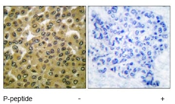 Immunohistochemistry (Paraffin-embedded sections) - GSK3 (alpha + beta) (phospho Y279 + Y216) antibody (ab52188)